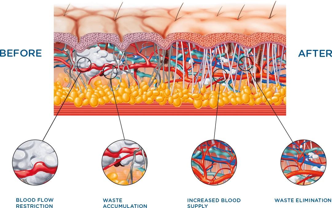 CelluTone Tissue