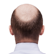 SmartGraft Hair Restoration