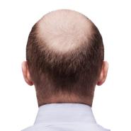 SmartGraft Hair Restoration