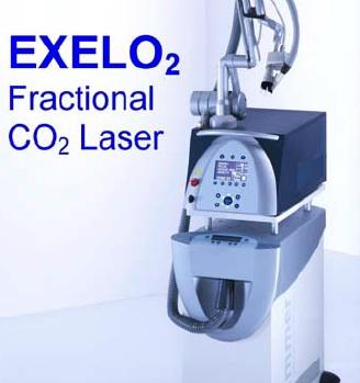 Exelo2 CO2 2011 $30,000
